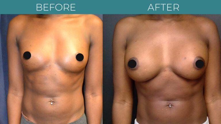 Breast Augmentation_9