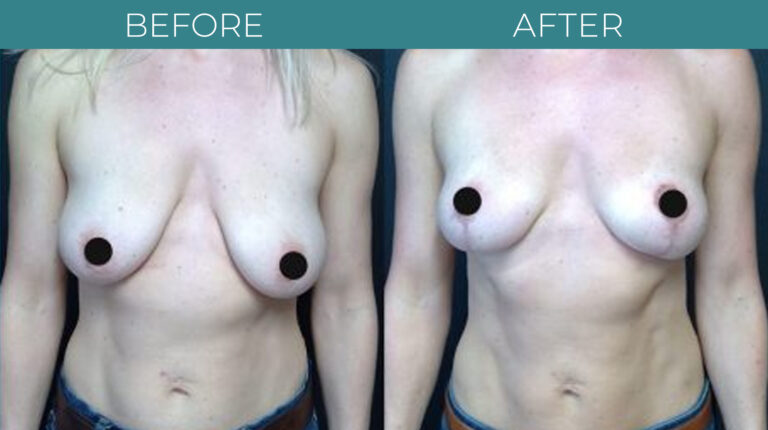 Breast Lift-BA_5
