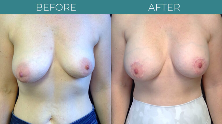 Breast Augmentation-BA_11